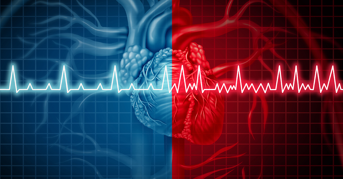 Atrial fibrillation and normal or abnormal heart rate rythm concept as a cardiac disorder as a human organ with healthy and unhealthy ecg monitoring in a 3D illustration style; blog: All About Atrial Fibrillation