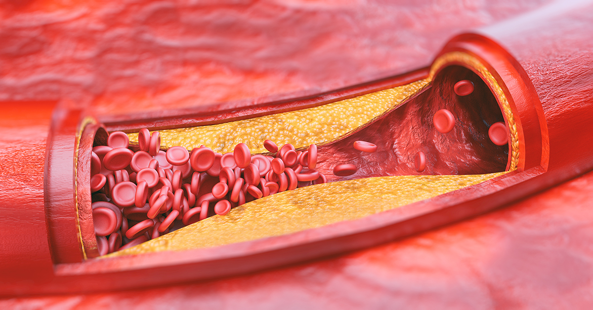 Closeup of a atherosclerosis -- 3D rendering; blog: Peripheral Vascular Disease: What You Need to Know